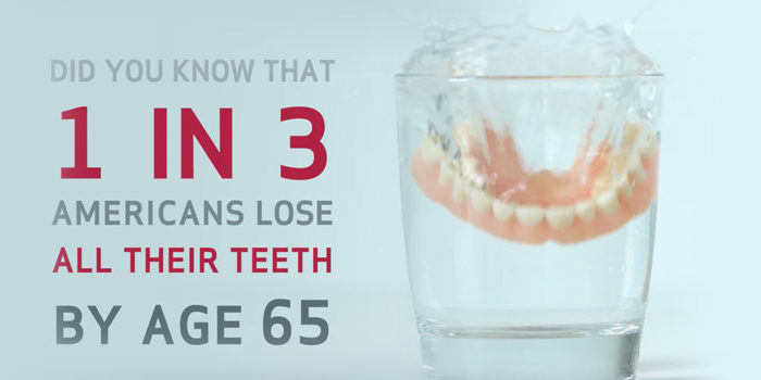 Did you know that 1 in 3 Americans lose all their teeth by age 65