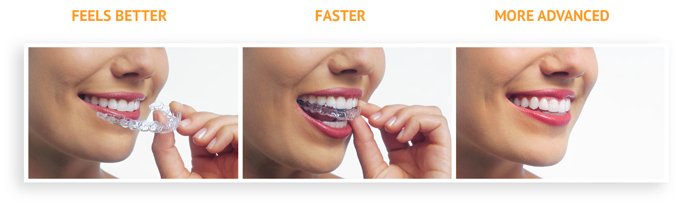 Woman putting invisalign on her teeth