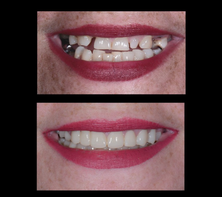 Brandy's teeth before and after